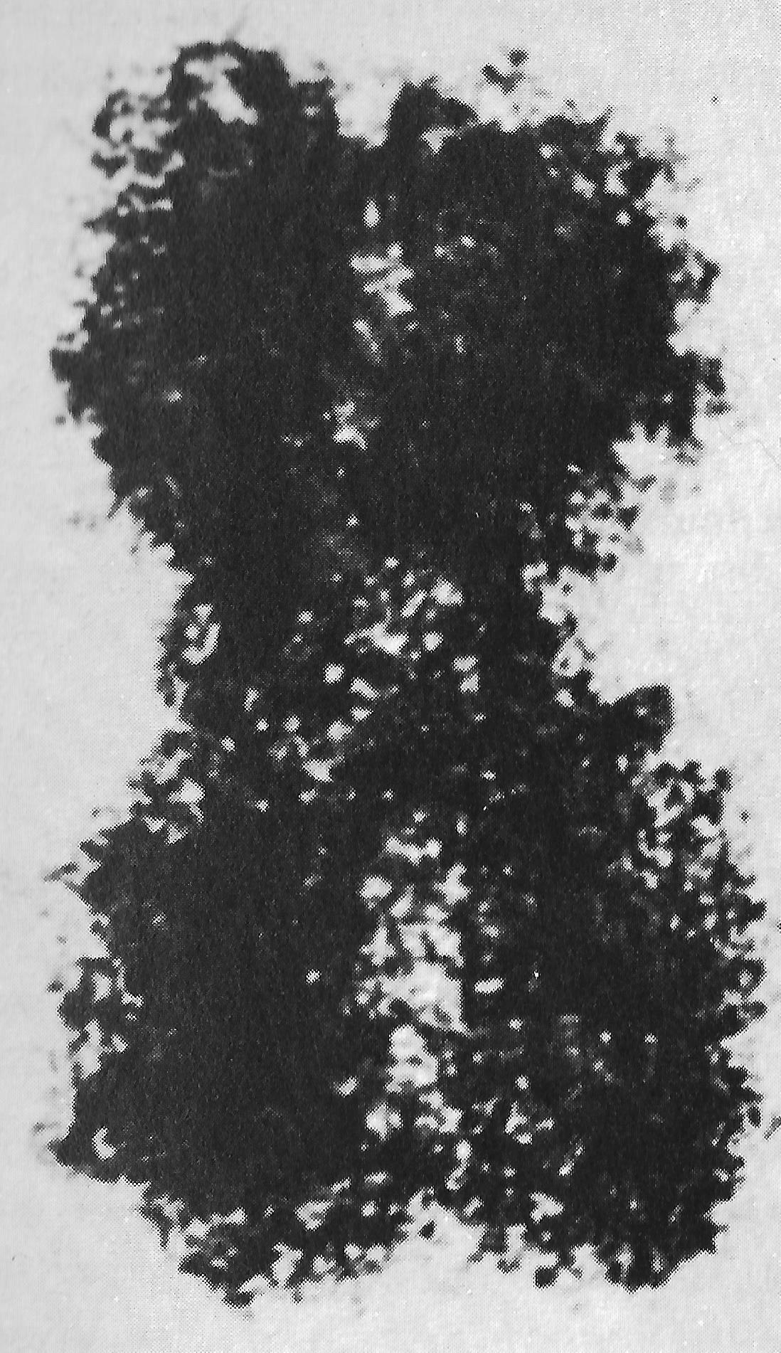 Struktur des Chromatins